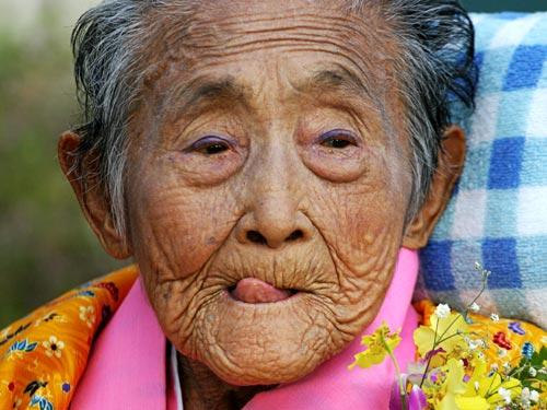 (PDF) First Autopsy Study of an Okinawan Centenarian ...