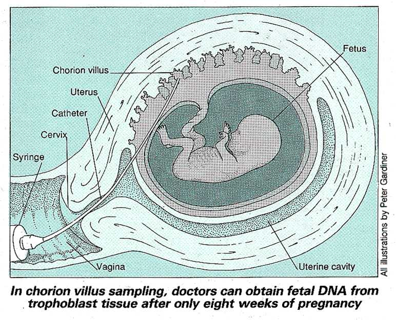 Obtaining DNA from a foetus