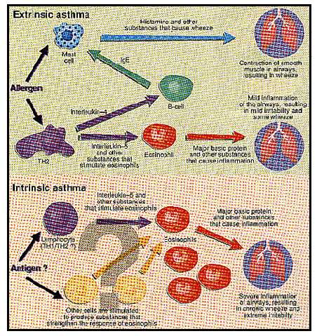 Extrinsic and Intrinsic Asthma Symptons