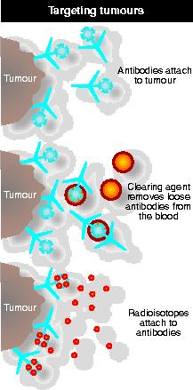 Targeting tumours with radiation