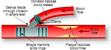 Coronary by-pass using smart materials