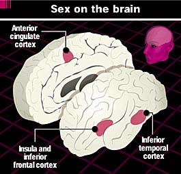 Areas of a man's brain that become active during sexual arousal