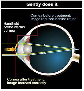 Radio waves for correcting long-sightedness