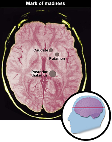 Brain scans to diagnose vCJD