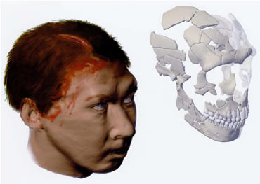 Computer-aided reconstruction of the skull revealed a horrific head injury
