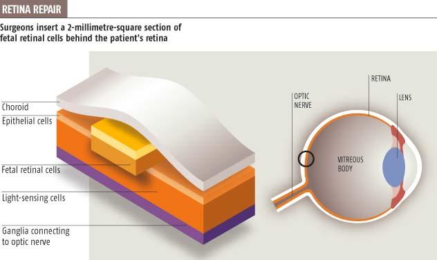 Retina repair