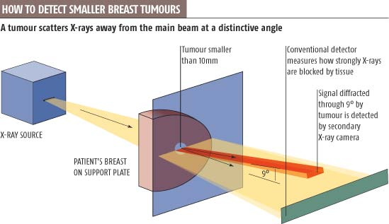 How to detect smaller breast tumours