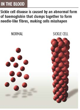 Undoing the twist could banish sickle cells
