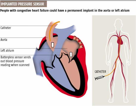 Implanted pressure sensor