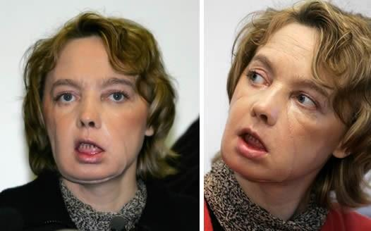 Isabelle Dinoire, the world's first face transplant recipient, is beginning to recover much of her facial function (Left image: Denis Charlet/AFP. Right image: Michael Spingler AP/Empics)