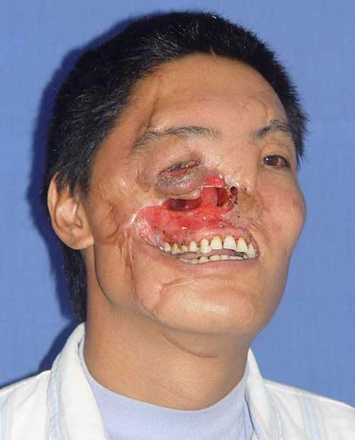 Following the bear attack and disfigurement, farmer Guoxing became a recluse