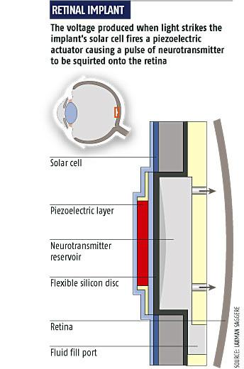 Retinal implant (Source: Laxman Saggere)