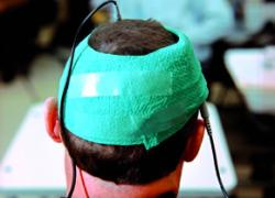 Testing tDCS against dementia
