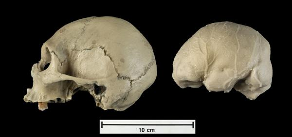 A skull cast and cast of the space inside the skull of a modern adult human who suffered from microcephaly. It is strikingly similar to the