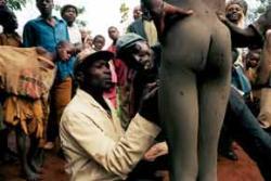 Male circumcision: A contentious cut