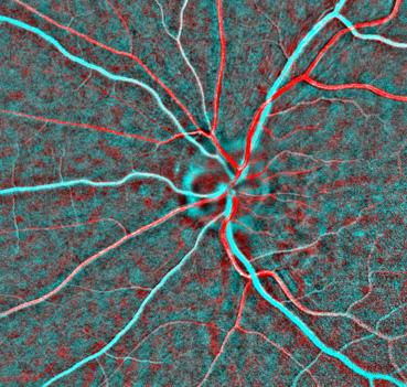 IRIS is more sensitive to colour than the human eye and can easily show doctors the distribution of oxygenated (red) and deoxygenated (cyan) blood in the human retina