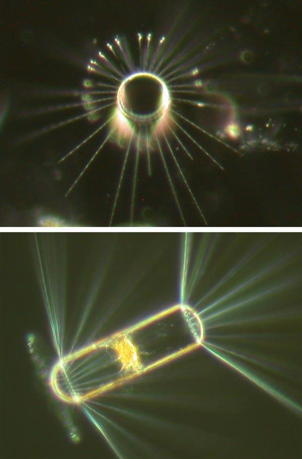 The diatom Corethron is a type of plant plankton which has silica walls and spines, and is abundant in the surface waters of the northwest Pacific.