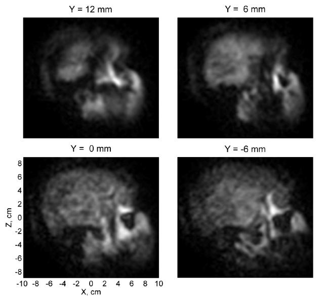 Ultra-low field magnetic resonance imaging (MRI) has captured its first blurry shots of a human brain