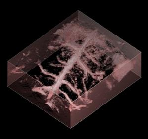The photoacoustic device captures high-resolution 3D images of blood vessels