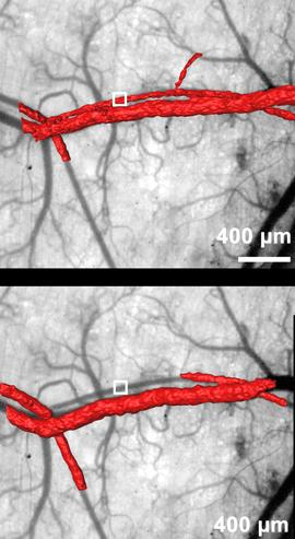 A dose of laser light causes a compound to release high-energy oxygen that kills tissue, in this case blocking off blood vessels. The red areas show blood flow before (top) and after (bottom) treatment
