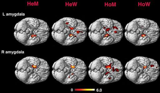 Some physical attributes of the homosexual brain resemble those found in the opposite sex. These images show the amygdala in heterosexual men and women (labeled HeM and HeW) and homosexual and women (labeled HoM and HoW)