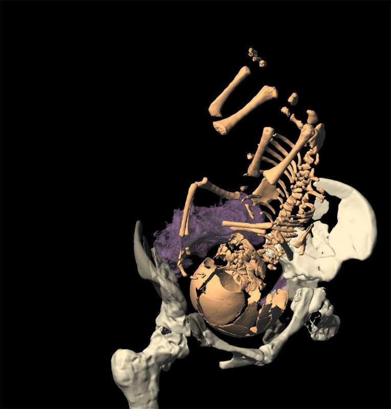 Reconstruction of the birth process in Neanderthals shows that newborns had large brains like modern human newborns, probably causing the same problems during birth