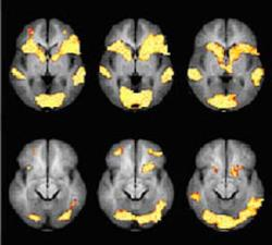 Could brain scans ever be safe evidence?