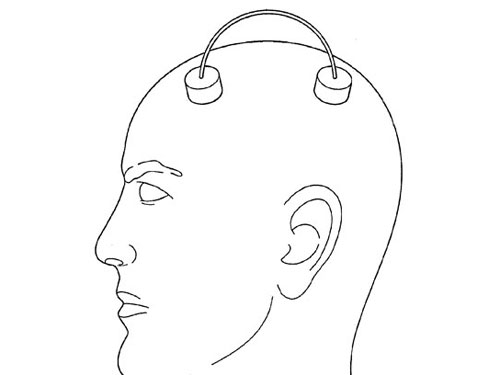 Attaching electrodes to the skin, particularly to a person's hairy scalp, is very tricky