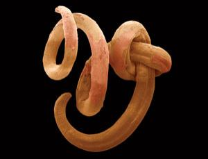 This nematode worm might look pretty simple, but it has all the key features of complex animals