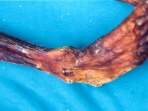 Tattoo lines on the right leg of the Tyrolean iceman, Ötzi.