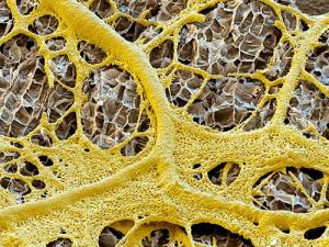 Slime mould feeding on the surface of an almond. These cunning organisms could be the missing link in memory circuits (Image: Eye of Science/Science Photo Library
