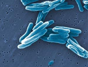TB-causing bacteria are now quicker to spot