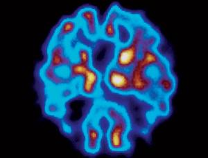 PET scans could be used to detect Alzheimer's plaques before symptoms of dementia appear