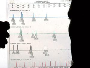 All the peaks should be in pairs in this DNA profile. When results are incomplete, bias can creep in