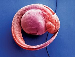 Zebrafish embryos like gravity