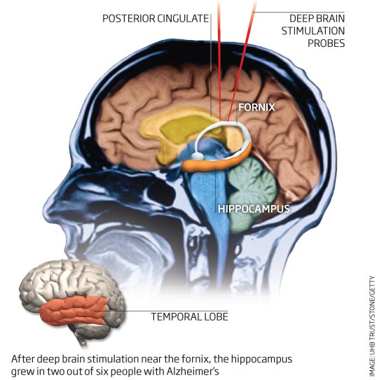 After deep brain stimulation near the formix, the hippocampus grew in two out of six people with Alzheimer's