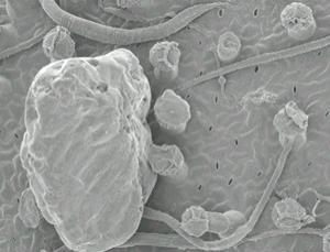 Scanning electron micrograph of nematodes for dinner (Image: Caio G. Pereira/Rafael S. Oliveira et al/PNAS)