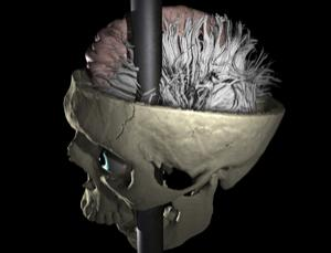White matter: a 3D scan of Phineas Gage's injury
