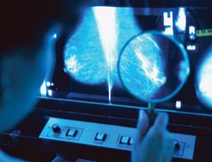 Mammograms revolutionised breast cancer diagnosis