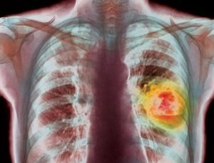 Lung cancer in people who have never smoked is a very different disease