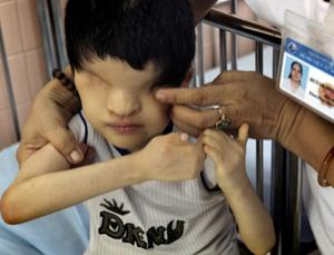Toxic effects: Tran Huynh Thuong Sinh, who was born without eyes, is checked by a nurse in Ho Chi Minh City