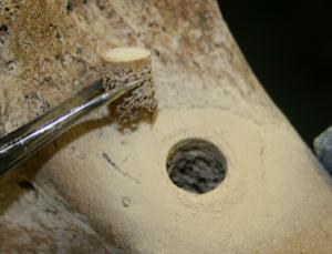 Moa bone with cylindrical section removed