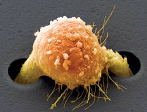 A cultured breast cancer cell starts to migrate outwards