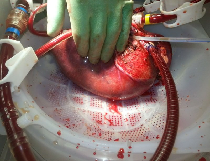 The device revives a donor liver within minutes of its being plumbed in