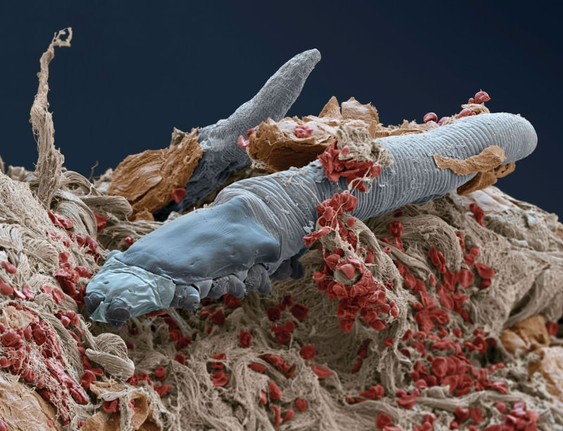 Eyelash mites, Demodex folliculorum