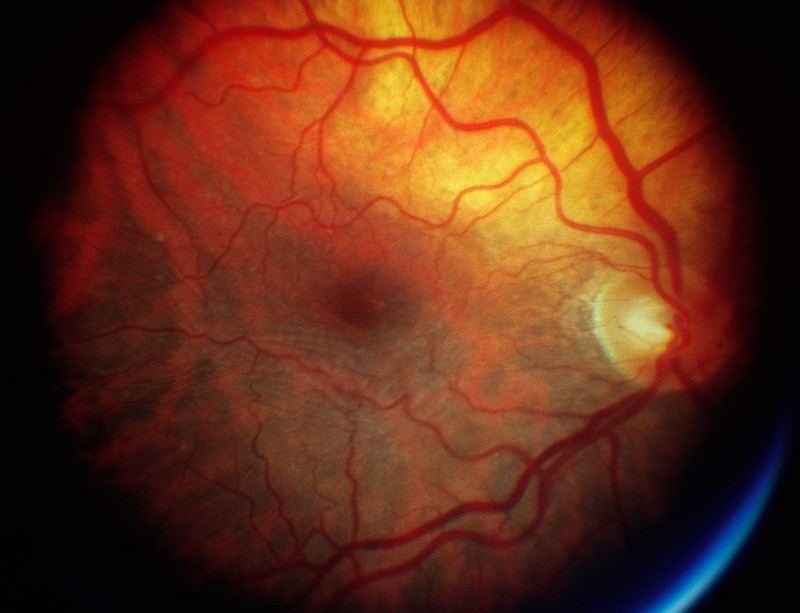 Age-related macular degeneration can leave people with only peripheral vision