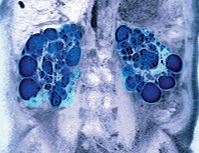 Kidney trouble: cysts fill with fluid form when cells have faulty tails