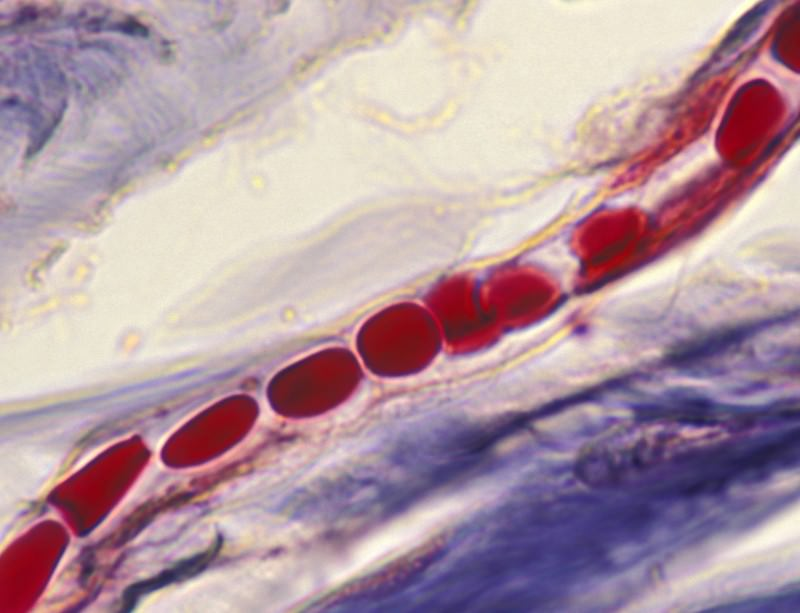 Little blood vessels are harder to monitor non-invasively