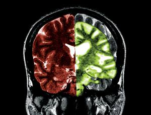 Are brain changes associated with Alzheimer's (green) reversible?