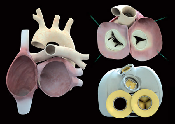 Replacement artificial heart keeps first patient alive